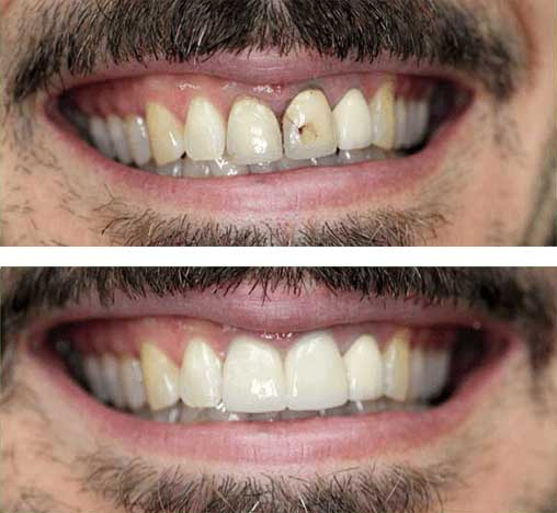 Before and after photo of chipped tooth repair