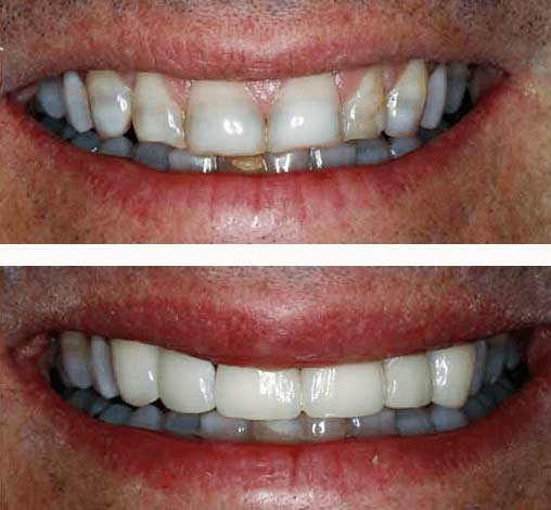 Before and after photo of tooth repair