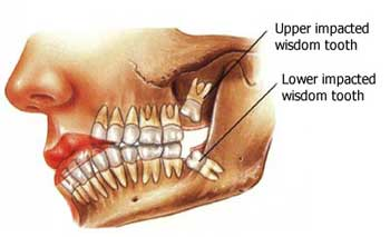 Image of compacted teeth